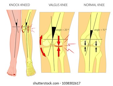 Vector illustration diagram. Shapes of human legs. Normal and curved legs. Knock knees.  Genu valgum and genu varum.  For advertising, medical publications. EPS 10.