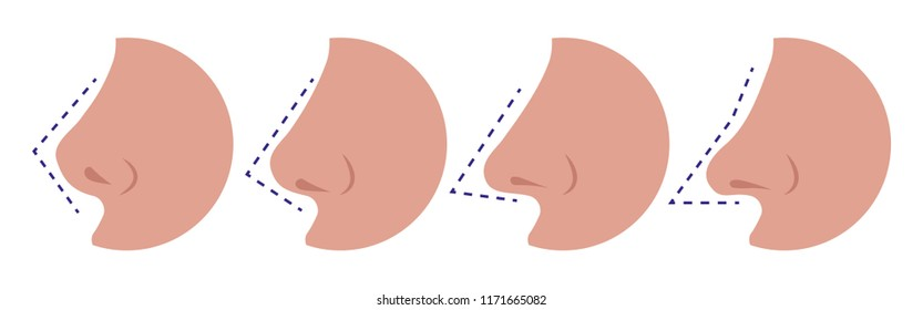 Vector illustration of different types of female noses. Isolated white background. Concept of plastic nose surgery. Side view, flat style.