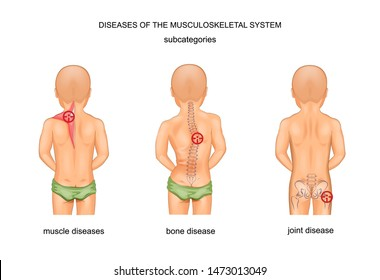 vector illustration of diseases of the musculoskeletal system
