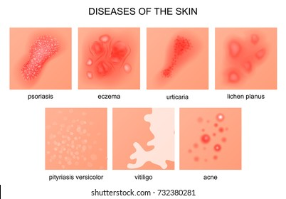 vector illustration of diseases of the skin