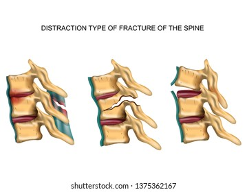 vector illustration of a distraction type of fracture of the spine