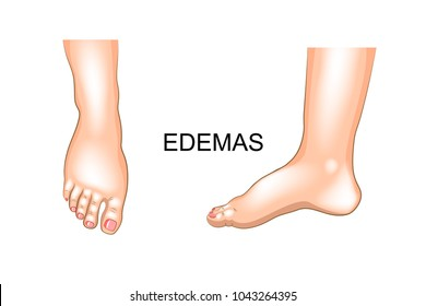 vector illustration of edema on feet. swelling