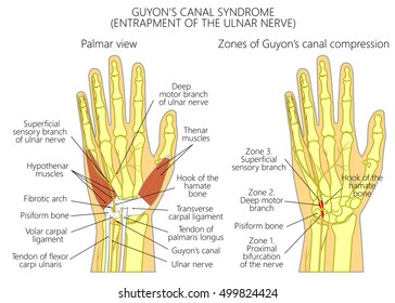Vector illustration of Entrapment of the ulnar nerve in the wrist in the canal of Guyon.  Used: transparency, blend mode.