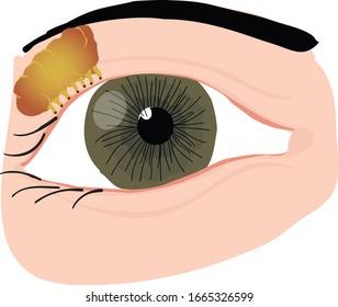 Vector Illustration of an Eye Anatomy, Lacrimotomy, Tear Gland, Lacrimal Gland