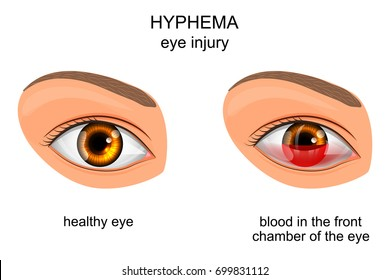 vector illustration of eye injury of the eye. hyphema.