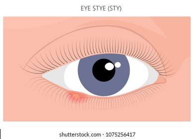 Vector illustration. Eye Stye (Sty) problem. Close up view. For advertising, medicinal publications. EPS 10