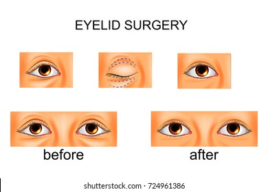 vector illustration of eyelid surgery, plastic surgery