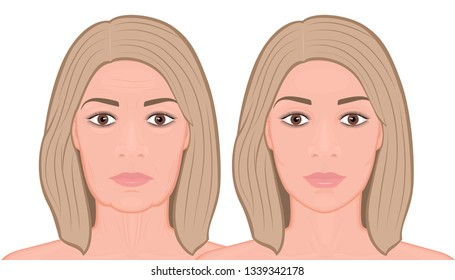 Vector illustration of a face lift surgery before and after procedure. For advertising of plastic surgery, medical and beauty publications