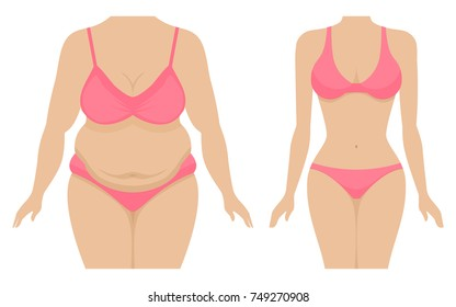 Vector illustration of a fat and thin female body. Isolated white background. The body of a woman before and after losing weight. Flat style. Belly and breasts of a girl after losing weight.
