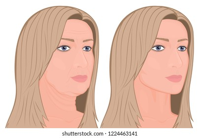 Vector illustration. A female face before, after plastic surgery - facial rejuvenation, face lift. Close up view. For advertising of cosmetological procedures, medical and beauty publications. EPS 10.