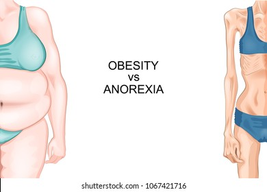 vector illustration of female figure with anorexia and obesity
