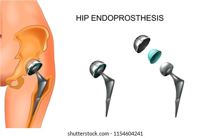 vector illustration of female hip and hip prosthesis. surgery.