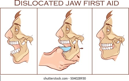 Vector illustration of a first aid dislocated Jaw