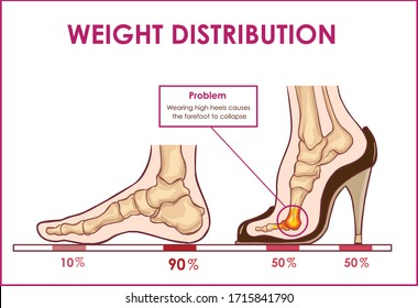 Vector illustration of  foot pain and weight distribution by wearing high heels