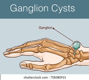 vector illustration of a Ganglion cyst