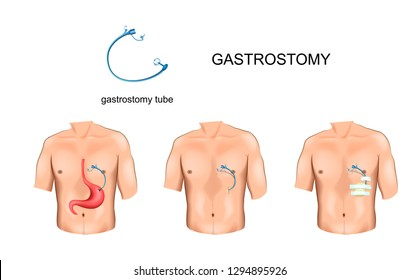 vector illustration of gastrostomy tube with esophageal obstruction