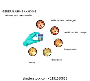 vector illustration of the General analysis of urine. microscopy