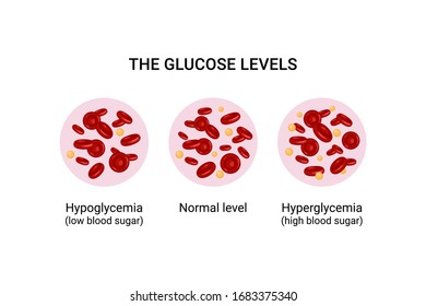 Vector illustration of glucose levels in the blood. Hypoglycemia. Hyperglycemia.