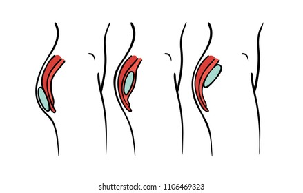 Vector illustration of gluteal plastic surgery types - buttocks implants positions chart: submuscular, intramuscular and subcutaneous implantation.