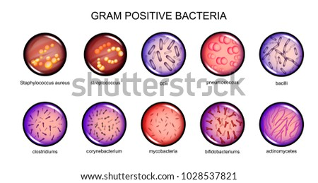 Sexually transmitted gram positive bacilli