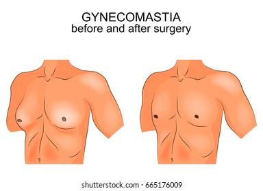 vector illustration of gynecomastia. before and after surgery
