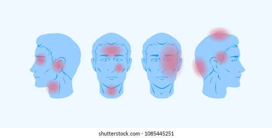 Vector illustration of headache types and red pain zones over the neutral male portraits as side profile and full face.