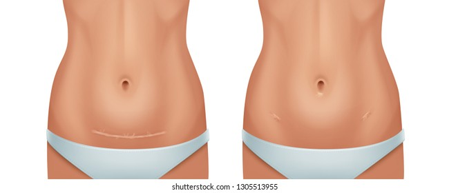 Vector illustration of healed scars human skin after cesarean operation , keloid from appendectomy, women bellies isolated on white background