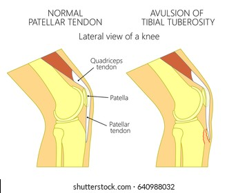Vector illustration of healthy adolescent knee joint and unhealthy knee with avulsion of tibial tuberosity. Lateral or side view of the leg. For advertising and other medical publications. EPS 10.