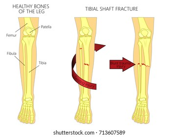 Vector illustration of a healthy bones of human leg and a leg with tibial shaft fracture. Twisting, blunt trauma injury. Front view of the foot with knee. For advertising, medical publications. EPS 10