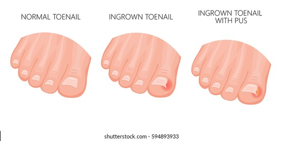 Vector illustration of a healthy foot, foot with ingrown nail, treatment of ingrown toenail and toe with infected tissue and pus pocket. Isolated on white background.