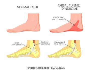 Vector illustration of  healthy human foot and a medial ankle injury. Tarsal tunnel syndrome. EPS 10.