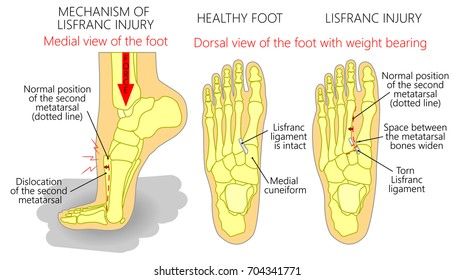 Ankle Ligament Injury Images, Stock Photos & Vectors | Shutterstock