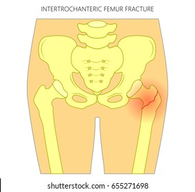 Vector illustration of healthy human hip and intertrochanteric femur fracture without dislocation. For advertising and medical publications. EPS 10