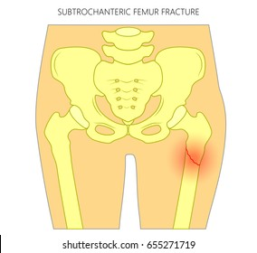 Vector illustration of healthy human hip and subtrochanteric femur fracture without dislocation. For advertising and medical publications. EPS 10
