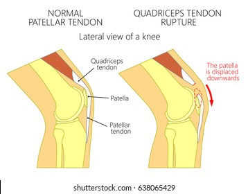 Vector illustration of a healthy knee joint and an unhealthy knee with a quadriceps tendon rupture problem. Anatomy of the human knee, side view of the bent knee. EPS 10.