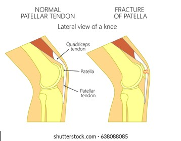 Quadriceps tendon images stock photos vectors shutterstock vector illustration of a healthy knee joint and an unhealthy knee with a fracture of patella ccuart Images
