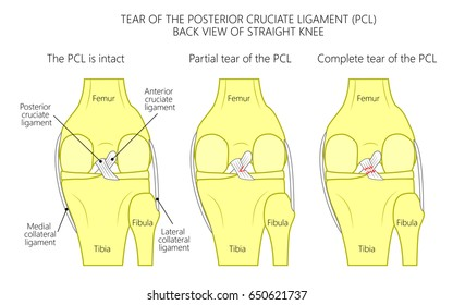 Acl Images, Stock Photos & Vectors   Shutterstock