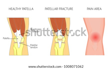 Vector Illustration Healthy Knee Joint Unhealthy Stock Vector