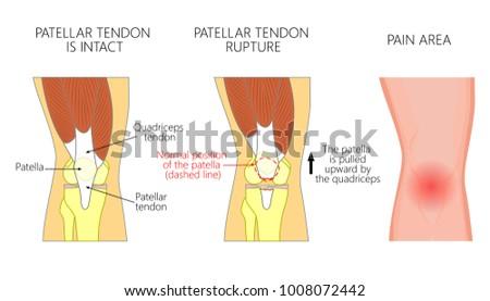 Vector Illustration Healthy Knee Joint Unhealthy Stock Vector ...