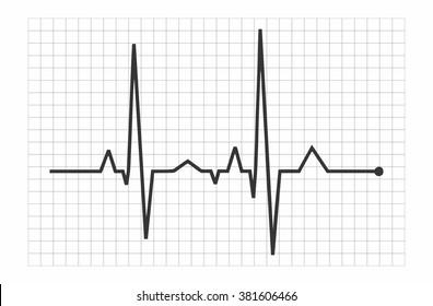 Vector Illustration heart rhythm - EKG
