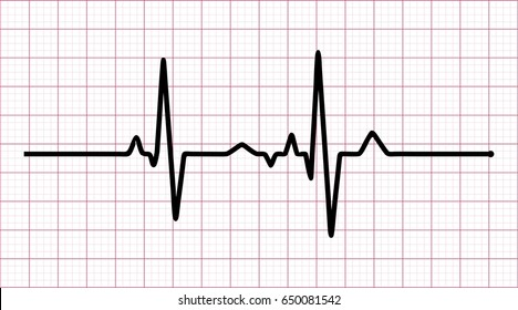 Vector Illustration of heart rhythm ekg, ecg on grid background .vector
