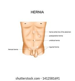 Strangulated Hernia Images, Stock Photos & Vectors