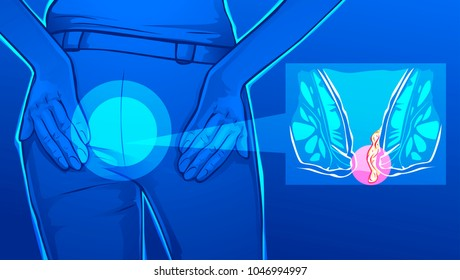 Vector illustration of human body with hemorrhoids