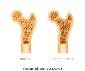 Vector illustration of human Bone, healthy and with osteoporosis