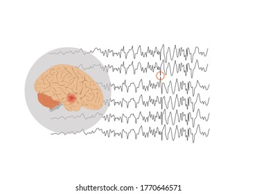 Vector illustration of human brain and abnormal brain waves waves representing focal seizure at temporal lobe