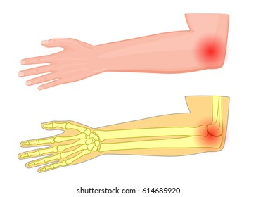 Vector illustration of a human elbow joint with a pain or injury. EPS 10