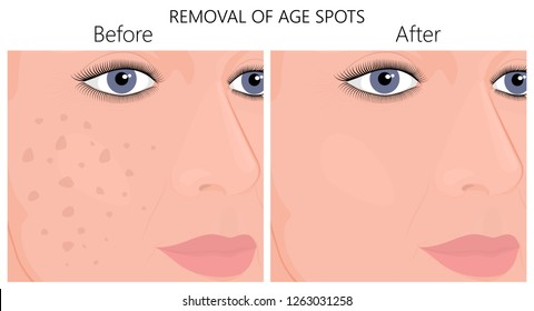 Vector illustration of a human face skin with age spots or melasma  before and after removal. For advertising, medical publications. EPS 10