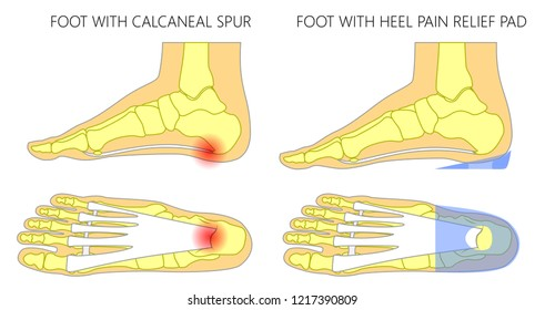 Vector illustration. Human foot with calcaneal spur, plantar fasciitis problem before, after heel pain relief pad. Medial, side and plantar view of a foot. For medical publications. EPS 10