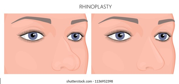 Vector illustration. A human nose before, after aesthetic plastic surgery - rhinoplasty (nose job). Close up view. For advertising, medical and beauty publications. EPS 10.