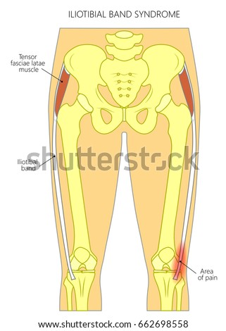 Vector Illustration Human Pelvis Hip Knee Stock Vector (Royalty Free ...